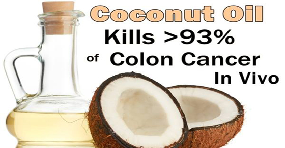coconut oil kills 93% of colon cancer