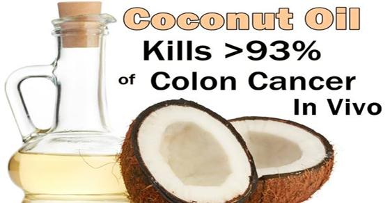 coconut oil kills 93% of colon cancer